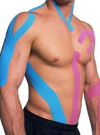 curso-tecnico-neuromuscular-fisioraping-m